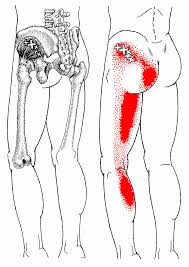 Low back pain, muscular trigger points