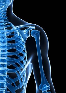 Biceps Tendonitis